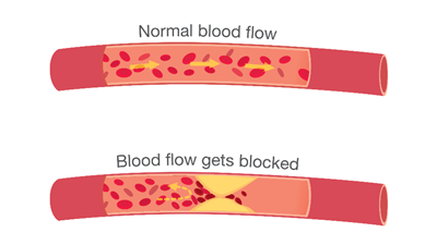Top artery is healthy. Middle & bottom arteries show plaque formation, rupturing, clotting & blood flow occlusion.