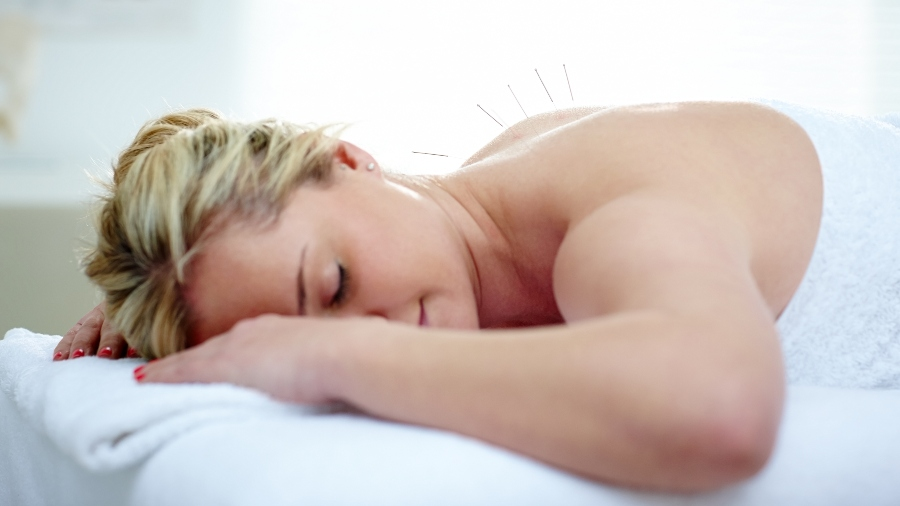 Top 10 Benefits of Acupuncture