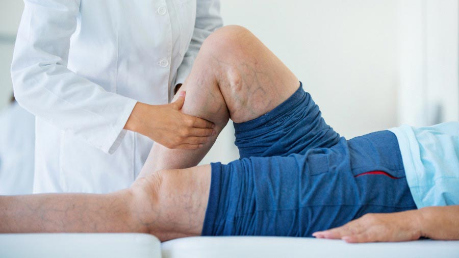 Doctor assessing patient with varicose veins