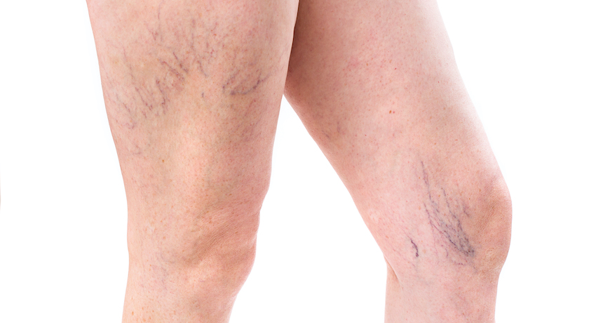 Should I Worry About Varicose Veins?
