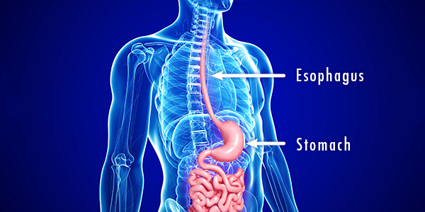 Esophageal Cancer 000021657334_Full