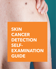 Skin Cancer Detection Self-Examination Guide