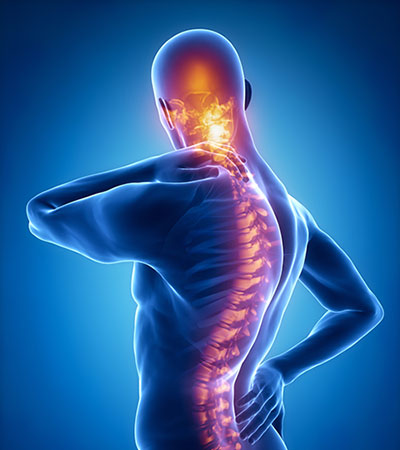 Conditions & Treatments | NeuroSpine Center of Excellence