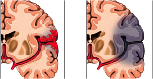 Orlando Health Comprehensive Stroke Program shows the area of the brain that can be affected by a stroke.